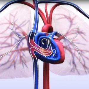 devesteyndefysiotherapieNoordfrieslandtherapie-beweegprogramma-hartfalen-1